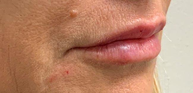 Lip Filler Gallery - Patient 54698022 - Image 6