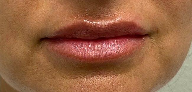 Lip Filler Gallery - Patient 54698052 - Image 1