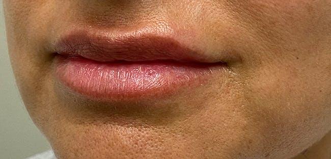 Lip Filler Gallery - Patient 54698052 - Image 3