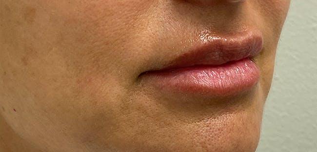 Lip Filler Gallery - Patient 54698052 - Image 5