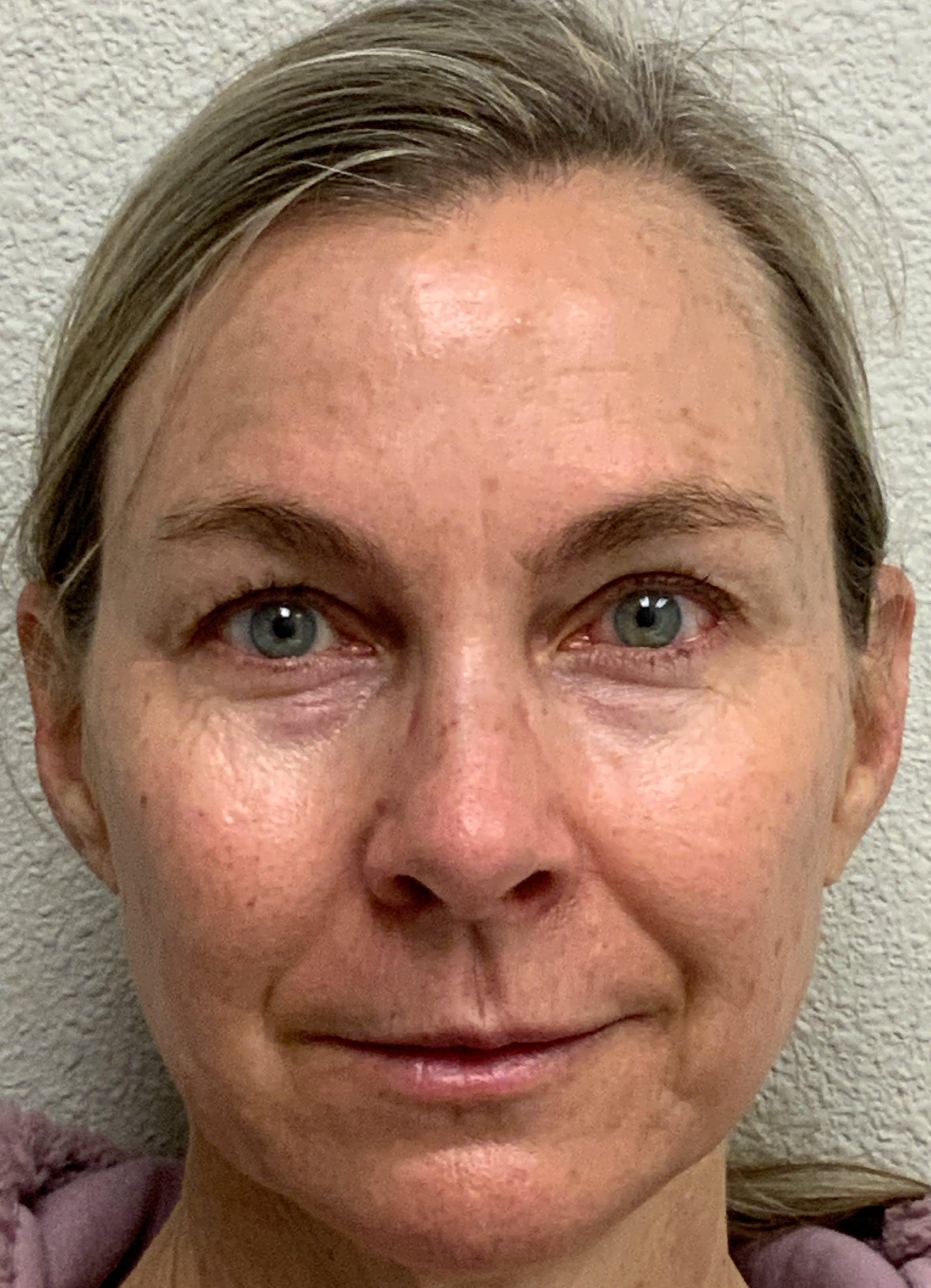 Botox Gallery - Patient 54698135 - Image 1