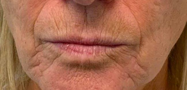 Lip Filler Gallery - Patient 54698178 - Image 1