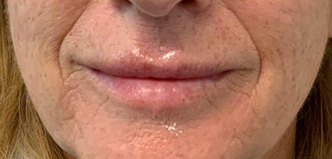 Lip Filler Gallery - Patient 54698178 - Image 2
