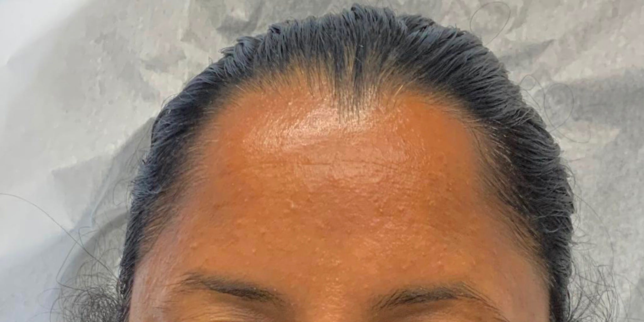 Hydrafacial Gallery - Patient 56157805 - Image 1