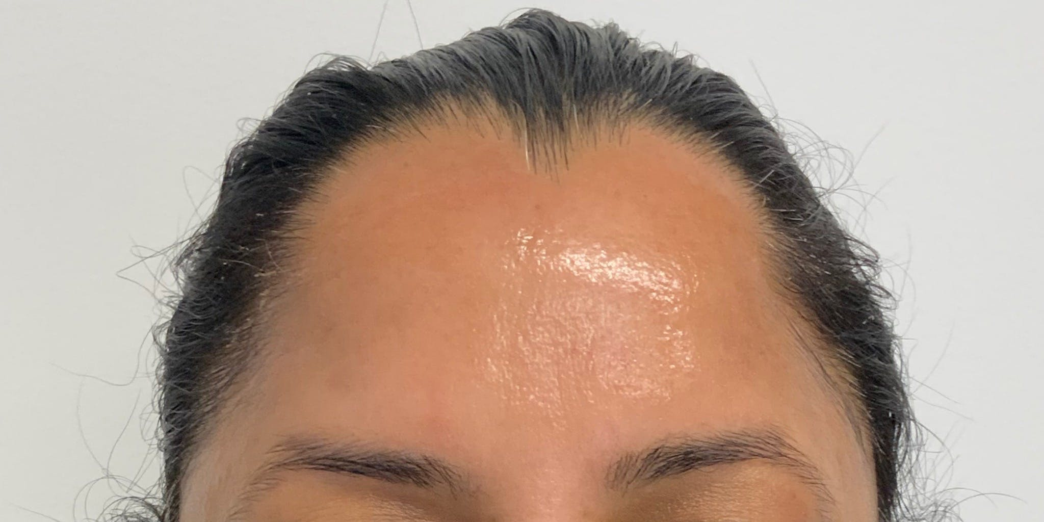 Hydrafacial Gallery - Patient 56157805 - Image 2