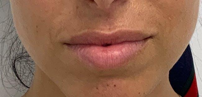 Lip Filler Gallery - Patient 56158695 - Image 1