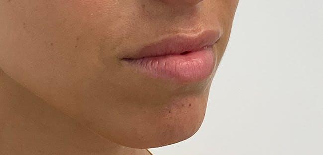 Lip Filler Gallery - Patient 56158695 - Image 3