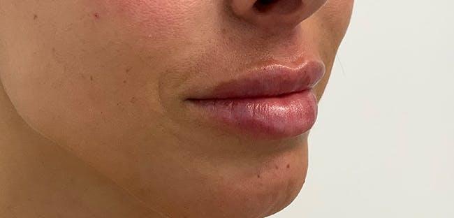 Lip Filler Gallery - Patient 56158695 - Image 4