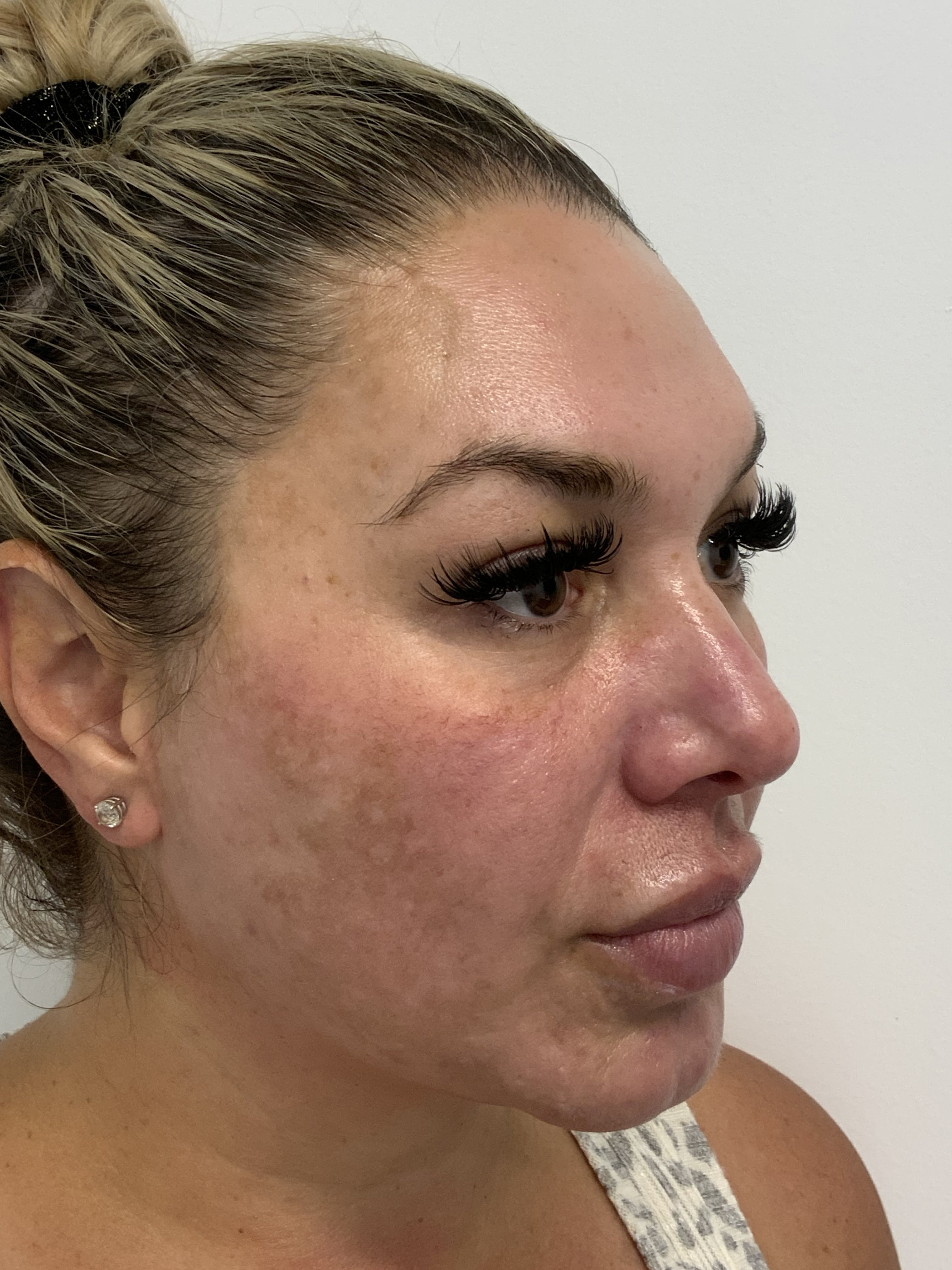 Hydrafacial Gallery - Patient 56158769 - Image 1
