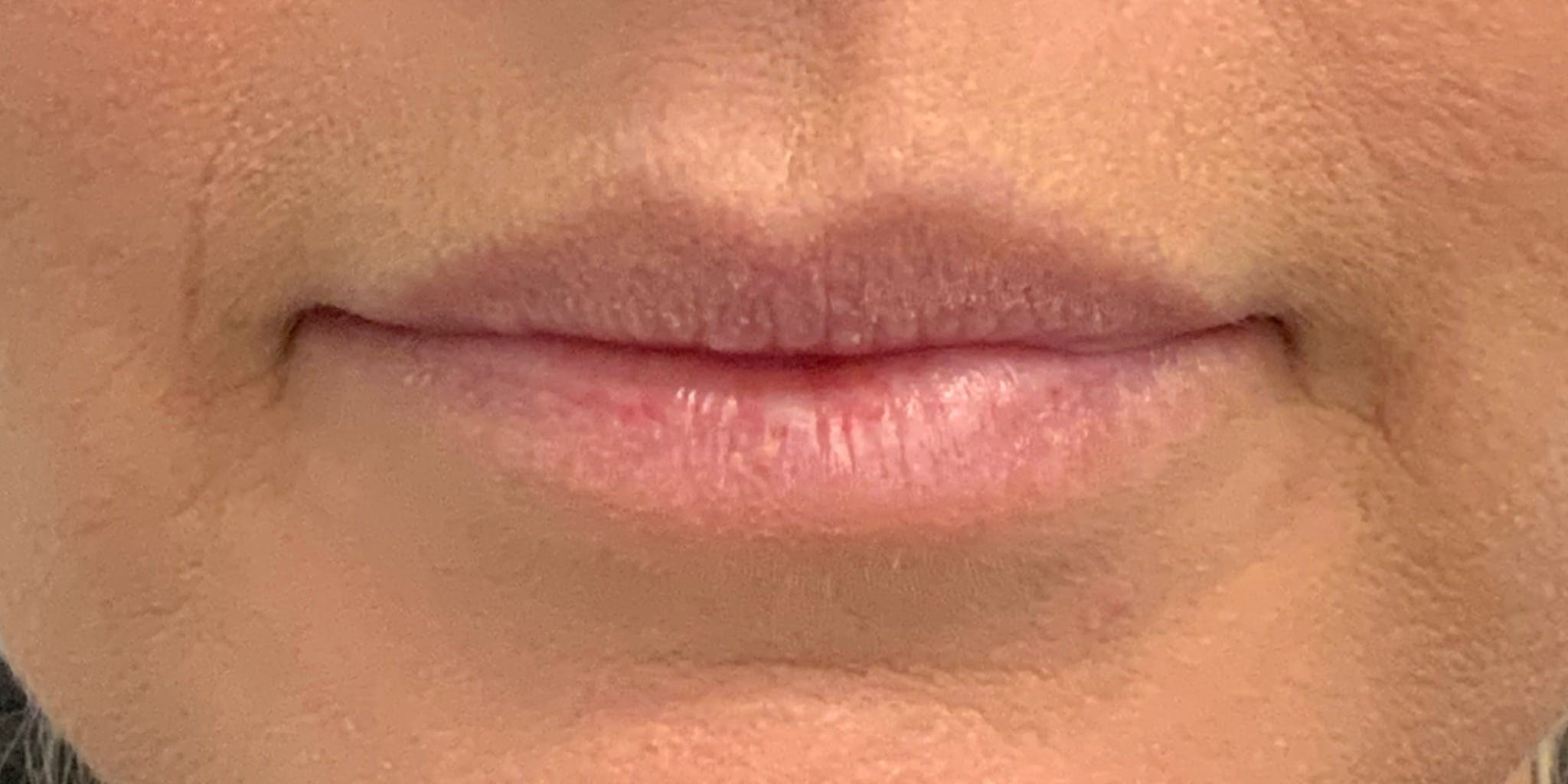 Lip Filler Gallery - Patient 56158930 - Image 1
