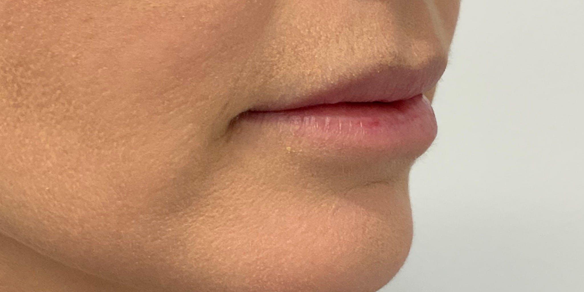 Lip Filler Gallery - Patient 56158930 - Image 3