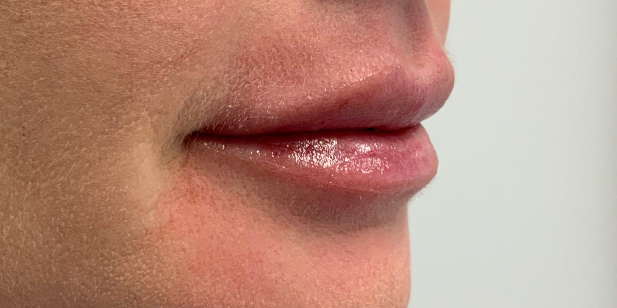 Lip Filler Gallery - Patient 56158930 - Image 4