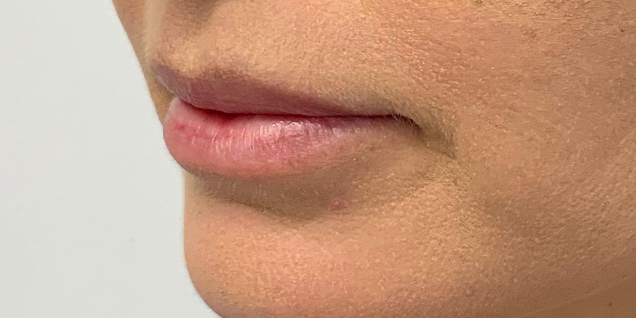 Lip Filler Gallery - Patient 56158930 - Image 5
