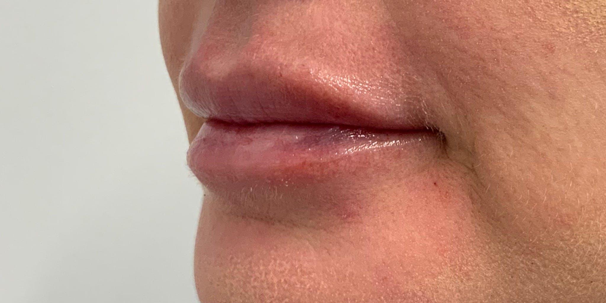 Lip Filler Gallery - Patient 56158930 - Image 6
