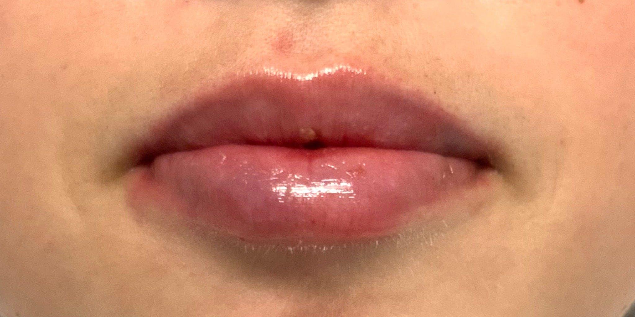 Lip Filler Gallery - Patient 56158931 - Image 2