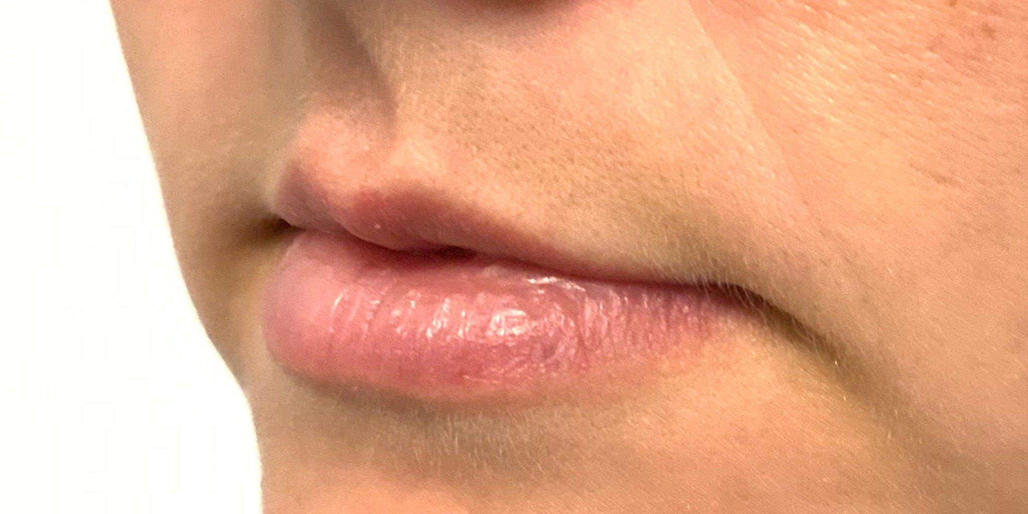 Lip Filler Gallery - Patient 56158932 - Image 1