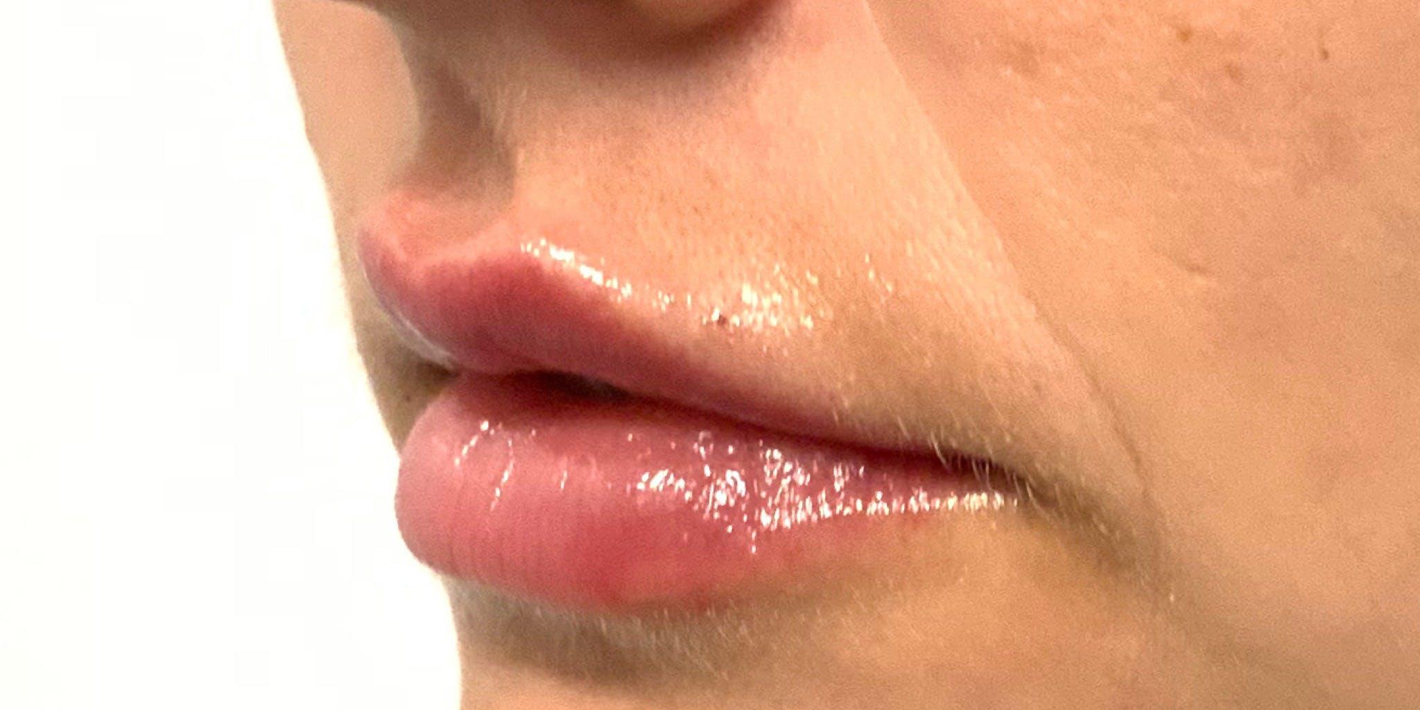 Lip Filler Gallery - Patient 56158932 - Image 2