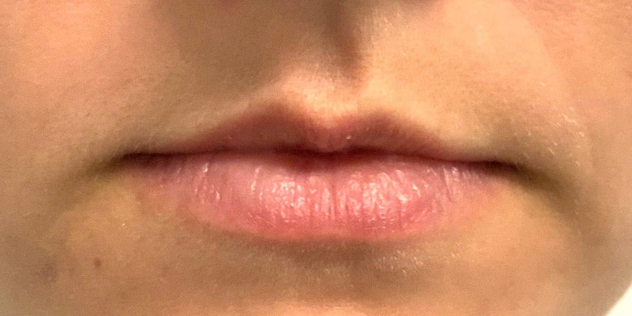 Lip Filler Gallery - Patient 56158932 - Image 3