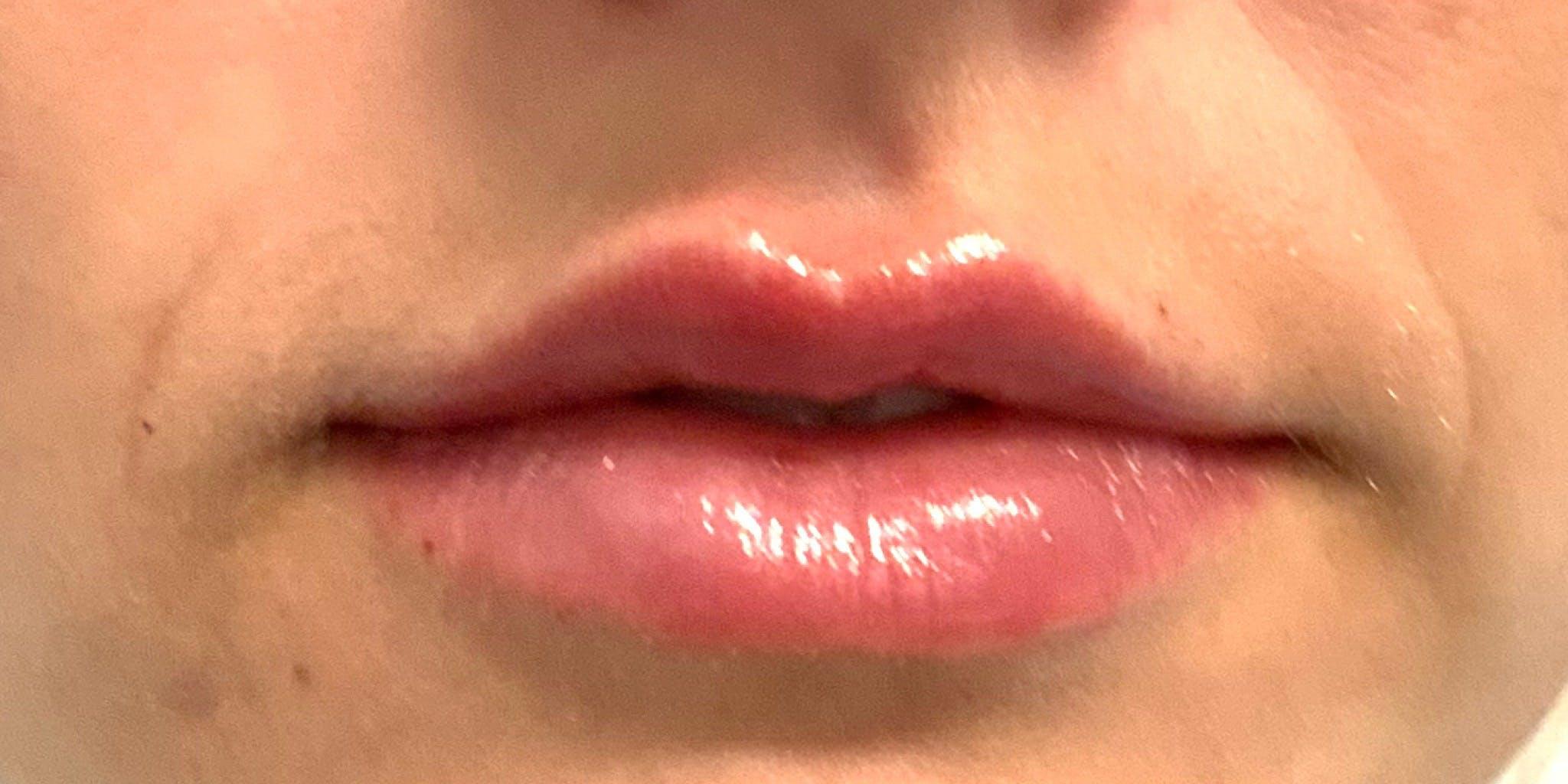 Lip Filler Gallery - Patient 56158932 - Image 4
