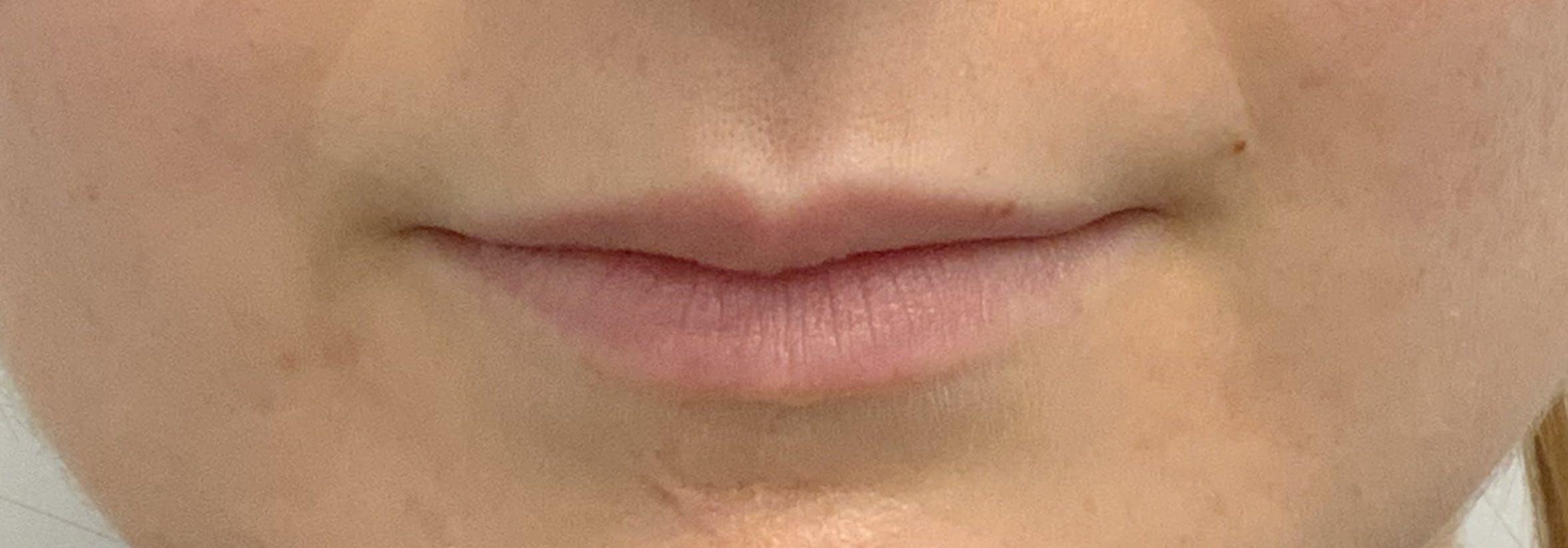 Lip Filler Gallery - Patient 56161104 - Image 1
