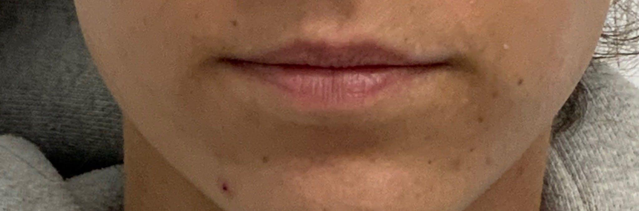 Lip Filler Gallery - Patient 56161105 - Image 1