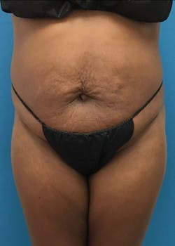Tummy Tuck Gallery - Patient 46612023 - Image 1