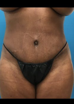 Tummy Tuck Gallery - Patient 46612023 - Image 2