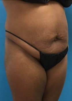 Tummy Tuck Gallery - Patient 46612023 - Image 3