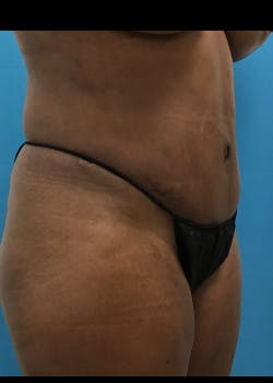 Tummy Tuck Gallery - Patient 46612023 - Image 4