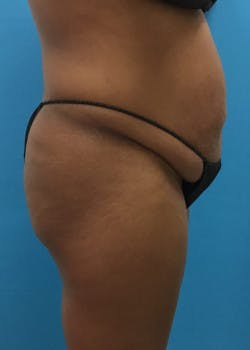 Tummy Tuck Gallery - Patient 46612023 - Image 5