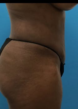 Tummy Tuck Gallery - Patient 46612023 - Image 6