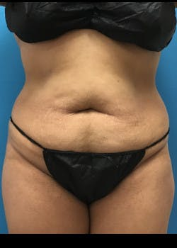 Tummy Tuck Gallery - Patient 46612032 - Image 1