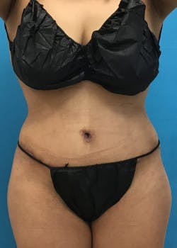 Tummy Tuck Gallery - Patient 46612032 - Image 2