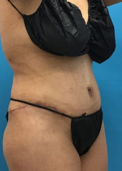 Tummy Tuck Gallery - Patient 46612032 - Image 4