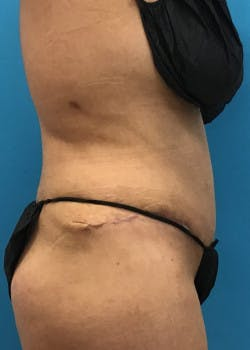 Tummy Tuck Gallery - Patient 46612032 - Image 6