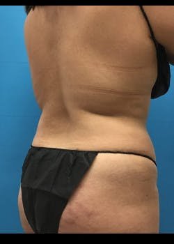 Tummy Tuck Gallery - Patient 46612032 - Image 7