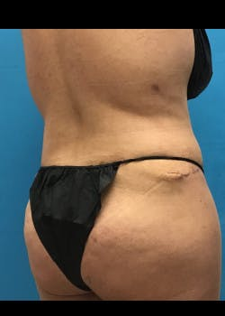 Tummy Tuck Gallery - Patient 46612032 - Image 8