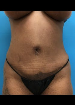 Tummy Tuck Gallery - Patient 46612034 - Image 2