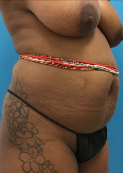 Tummy Tuck Gallery - Patient 46612034 - Image 3