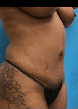 Tummy Tuck Gallery - Patient 46612034 - Image 4