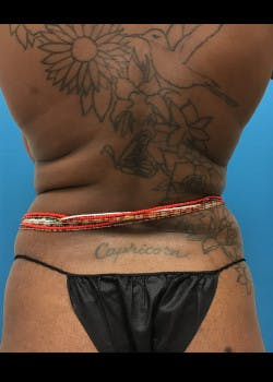 Tummy Tuck Gallery - Patient 46612034 - Image 5