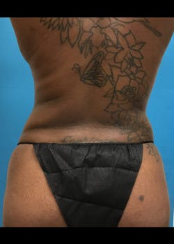 Tummy Tuck Gallery - Patient 46612034 - Image 6