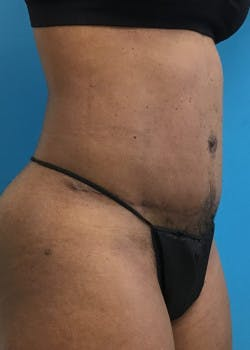 Tummy Tuck Gallery - Patient 46612040 - Image 2