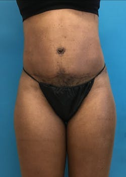 Tummy Tuck Gallery - Patient 46612040 - Image 6
