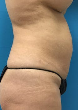 Tummy Tuck Gallery - Patient 46612041 - Image 1