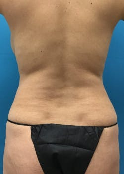 Tummy Tuck Gallery - Patient 46612041 - Image 3