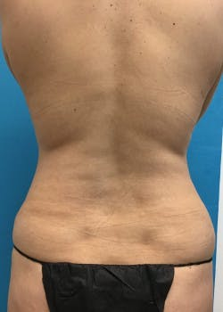 Tummy Tuck Gallery - Patient 46612041 - Image 4