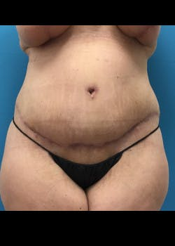 Tummy Tuck Gallery - Patient 46612047 - Image 2