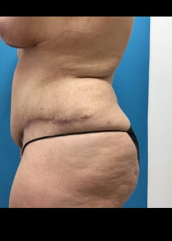 Tummy Tuck Gallery - Patient 46612047 - Image 6