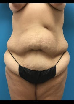 Tummy Tuck Gallery - Patient 46612070 - Image 1